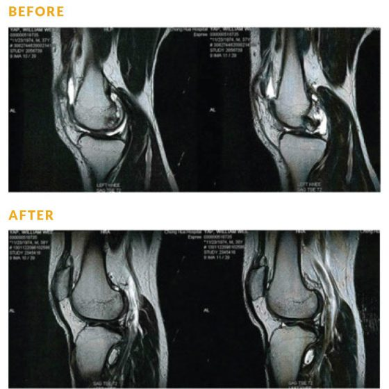 EW Villa Medica Success Case - CHRONIC KNEE CONDITION - BILL YAP
