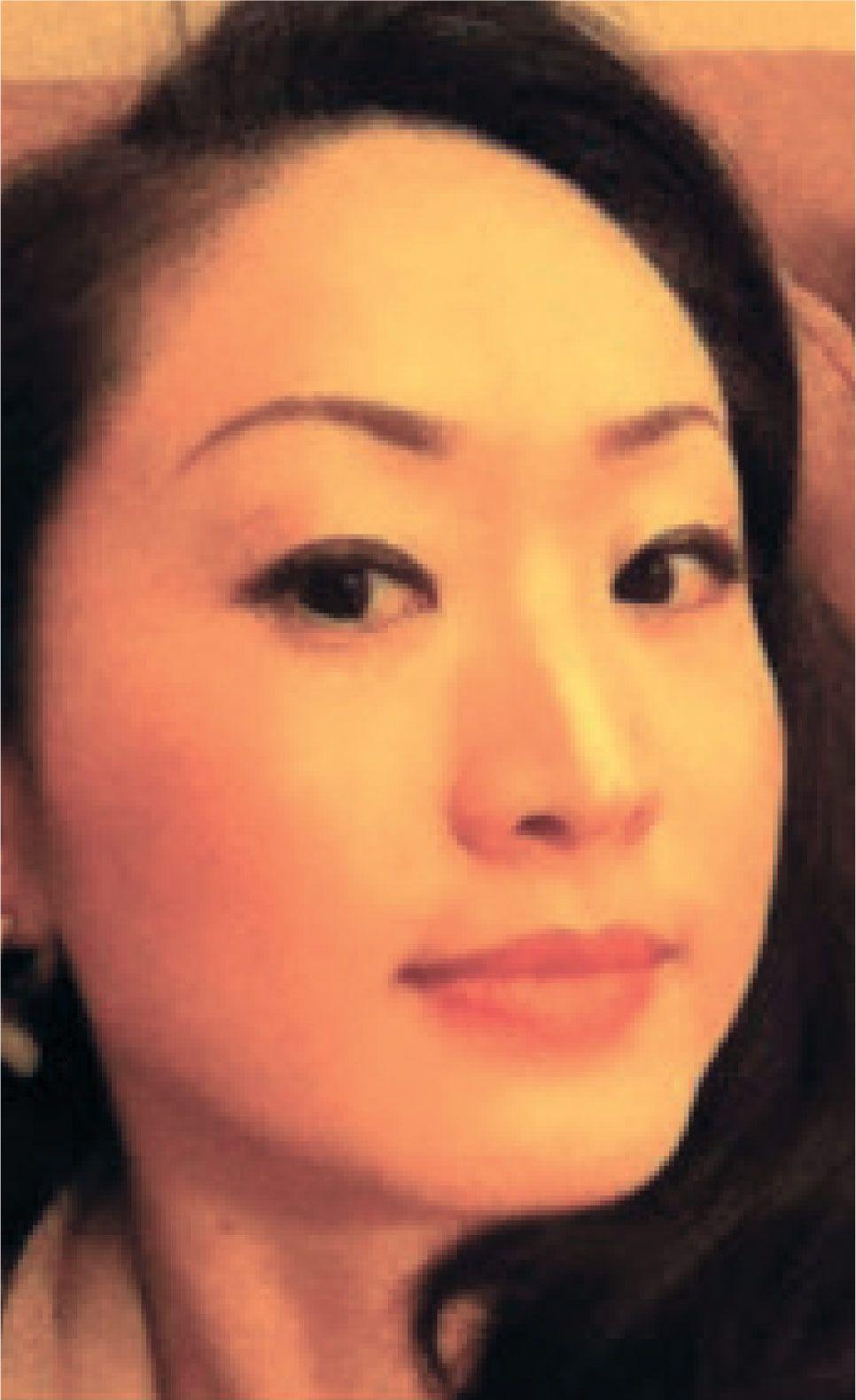EW Villa Medica Success Case - AESTHETIC & COSMETIC TREATMENT - NANAE