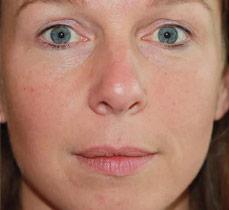 EW Villa Medica - Under eye wrinkles & Marionette Lines wrinkles - Filler, produced with Hyaluronic Acid