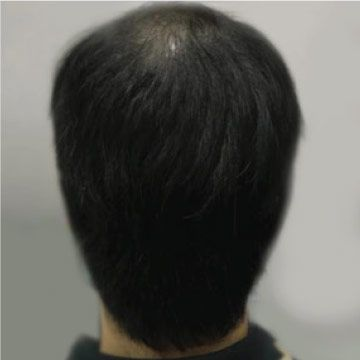 EW Villa Medica - Hair Follicles Regenerator (HFR), Hair loss treatment with HFR / Duration: 6 weeks